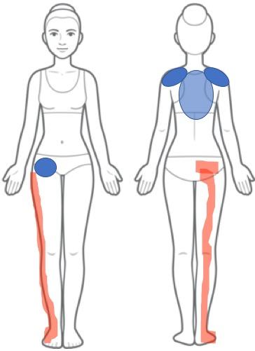 臀部〜足全体の痺れ・痛み