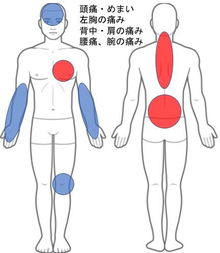 【改善症例】交通事故後の体調不良・全身の痛み