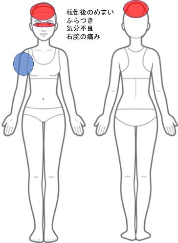 【改善症例】転倒後のめまい・ふらつき・気分不良・右腕の痛み
