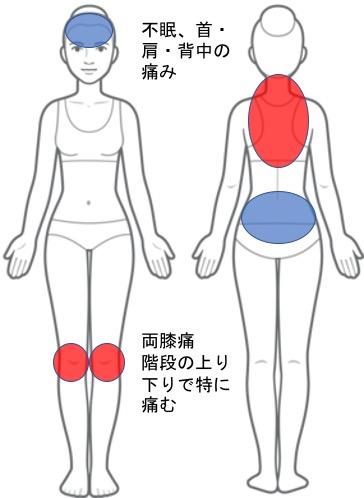 【改善症例】両膝痛、首から背中にかけての痛み、不眠