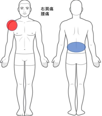 【改善症例】右肩の痛み、腰痛